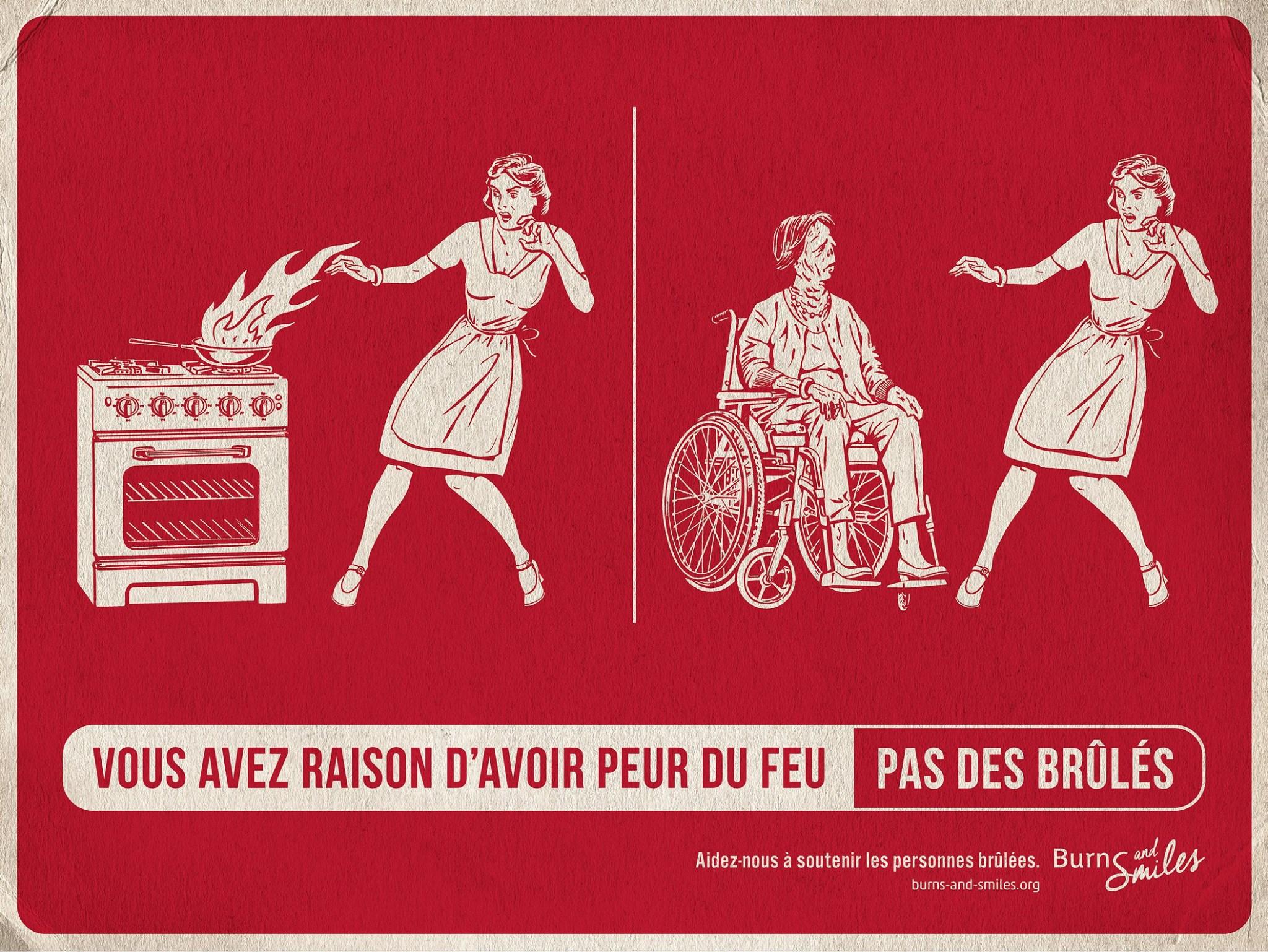 burns-and-smiles-publicite-communication-print-press-ad-feu-brules-burn-agence-tbwa-paris-2