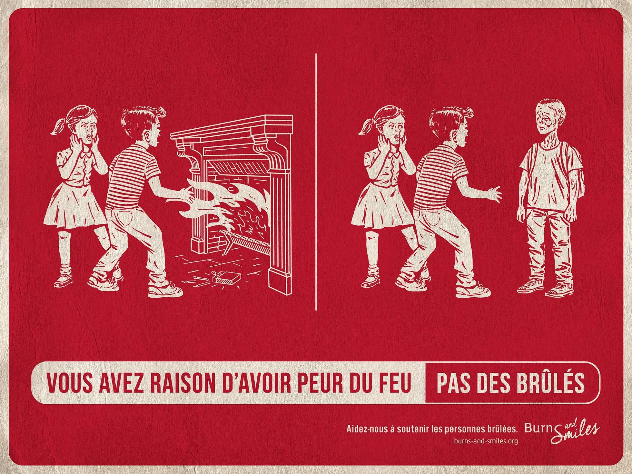 burns-and-smiles-publicite-communication-print-press-ad-feu-brules-burn-agence-tbwa-paris-3