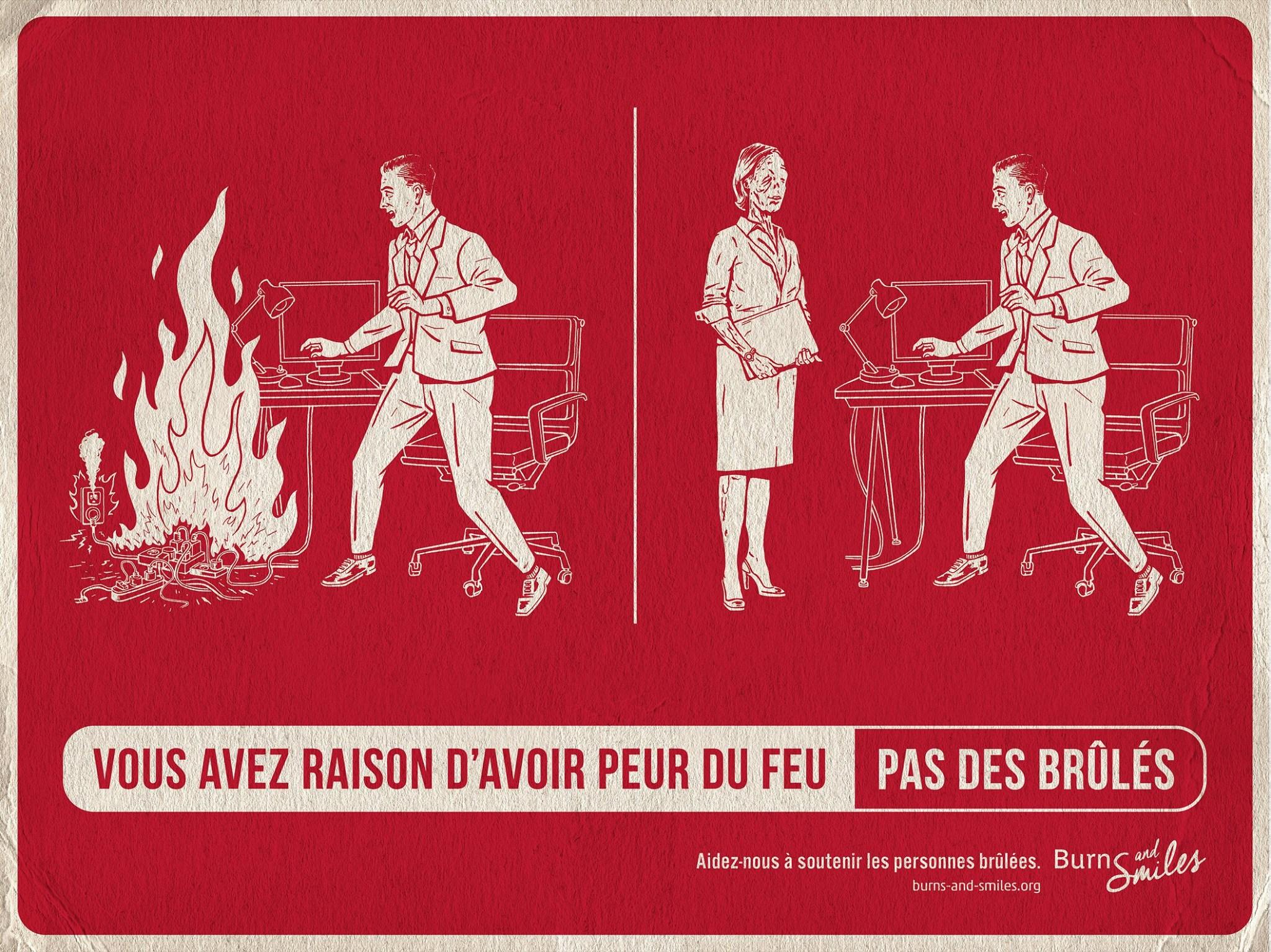 burns-and-smiles-publicite-communication-print-press-ad-feu-brules-burn-agence-tbwa-paris-4