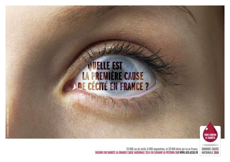 fédération-francaise-des-diabétiques-diabéte-cessité-auveugle-amputé-amputation-cause-nationale-2014-agence-lj-corporate-2